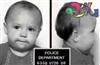 علل دزدی در کودکان