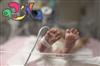 راههای مراقبت از نوزادان نارس