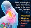 آرتروز گردن و راههای درمان آن