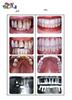 ایمپلنت دندان چیست  سری پنجم