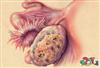 تنبلی تخمدان و ناباروری سری سوم